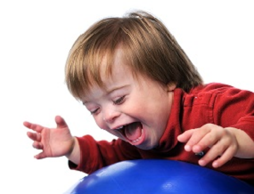 Down Syndrome: Early motor skill development & physiotherapy